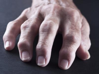 nuevo-artritis_0