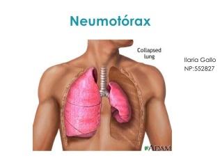neumotrax-1-728